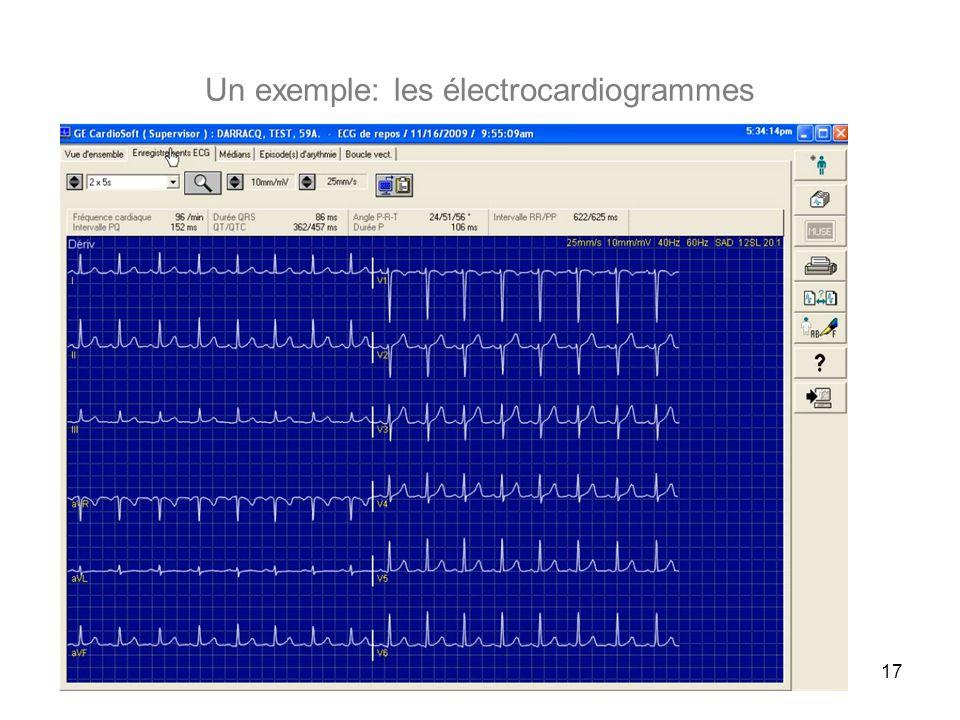 Un exemple: les électrocardiogrammes 17