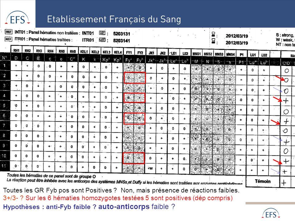 Alpes Méditerranée Toutes les GR Fyb pos sont Positives ? Non, mais présence de réactions faibles. 3+/3- ? Sur les 6 hématies homozygotes testées 5 so