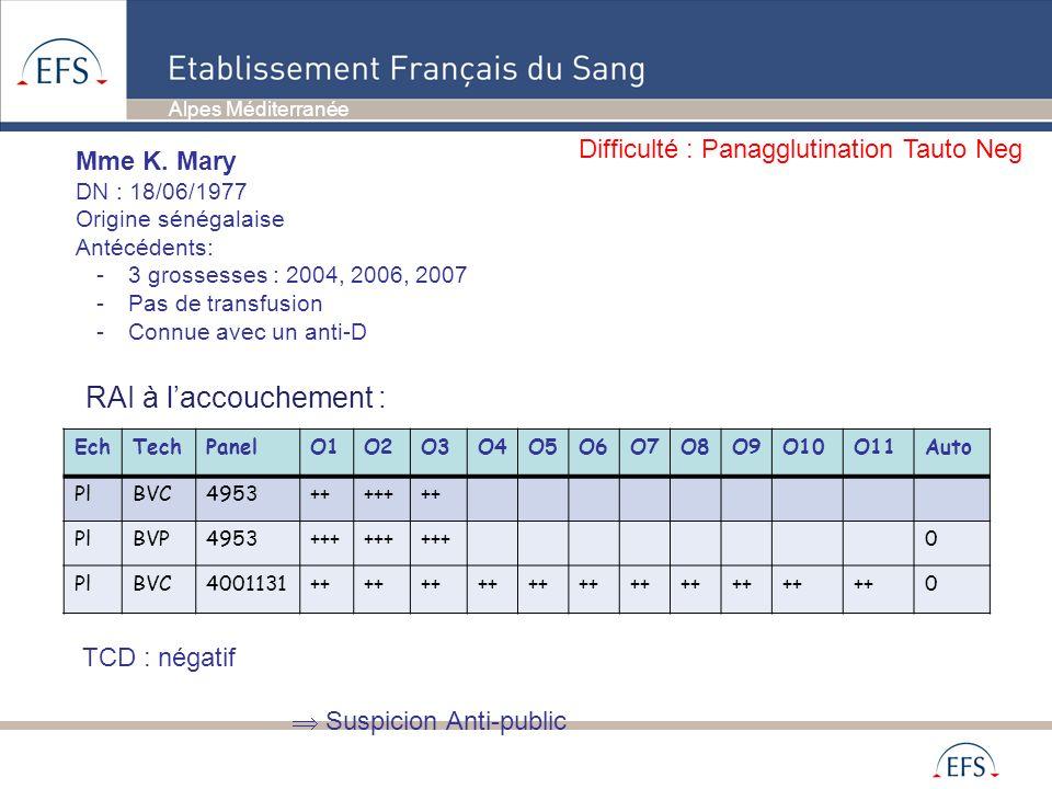 EchTechPanelO1O2O3O4O5O6O7O8O9O10O11Auto PlBVC4953+++++++ PlBVP4953+++ 0 PlBVC4001131++ 0 RAI à laccouchement : TCD : négatif Suspicion Anti-public Mm