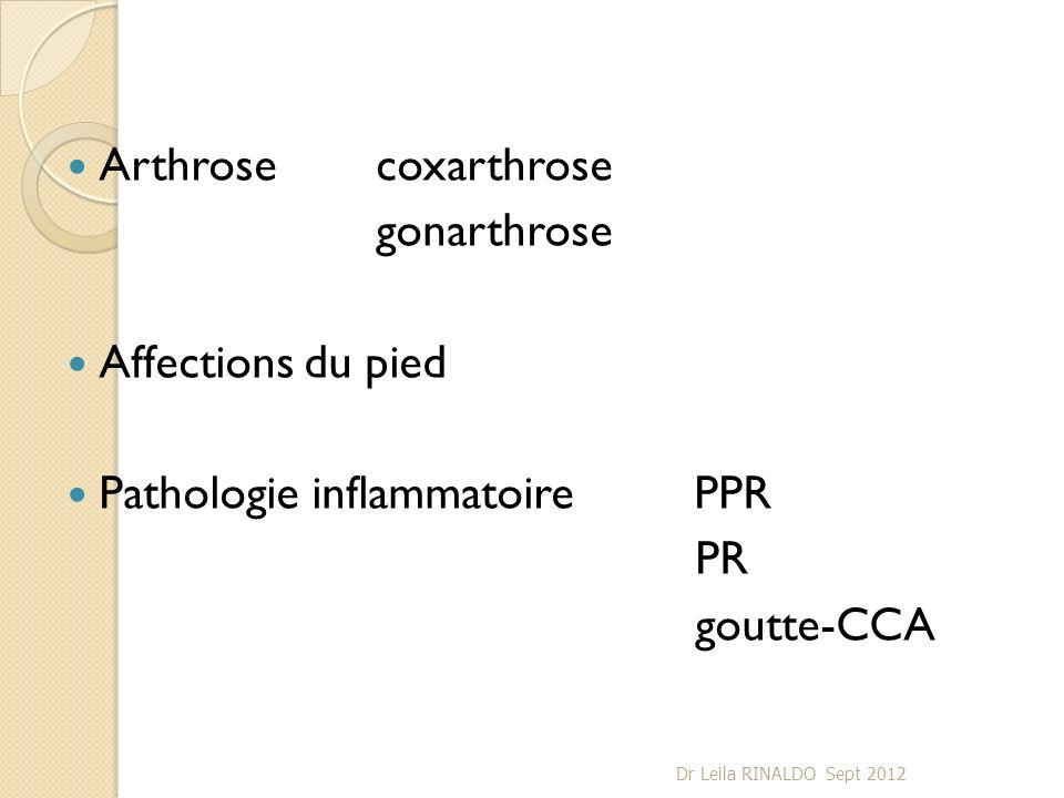 Arthrosecoxarthrose gonarthrose Affections du pied Pathologie inflammatoire PPR PR goutte-CCA Dr Leila RINALDO Sept 2012