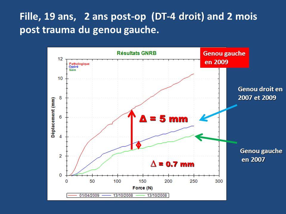 DT-4 droit) Fille, 19 ans, 2 ans post-op (DT-4 droit) and 2 mois post trauma du genou gauche. Genou gauche en 2007 en 2007 Genou gauche en 2009 en 200