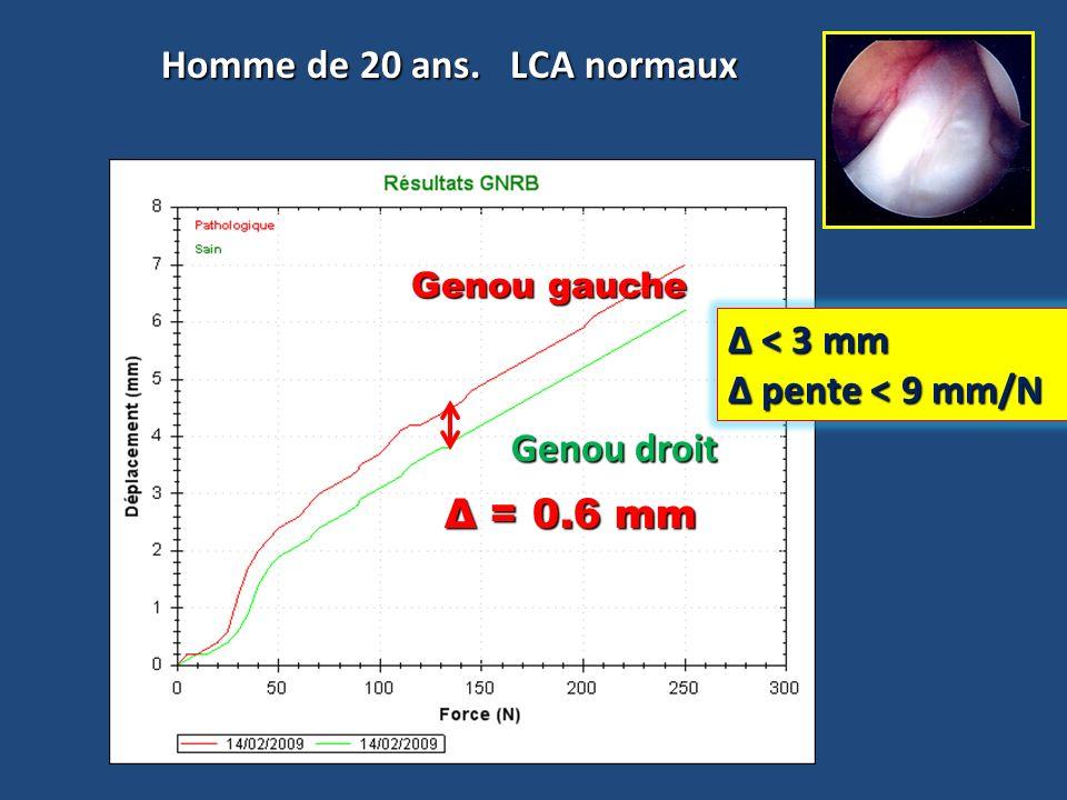Homme de 20 ans. LCA normaux Genou gauche Genou droit Δ = 0.6 mm Δ < 3 mm pente < 9 mm/N pente < 9 mm/N