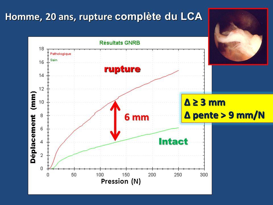 Homme, 20 ans, rupture complète du LCA Homme, 20 ans, rupture complète du LCA Δ = 10 mm Intact rupture rupture Pression (N) Déplacement (mm) 6 mm Δ 3