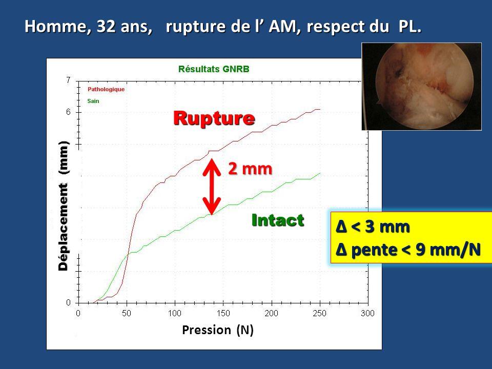 Homme, 32 ans, rupture de l AM, respect du PL. Δ =2.2 mm Rupture Rupture Intact 2 mm Pression (N) Déplacement (mm) Δ < 3 mm pente < 9 mm/N pente < 9 m