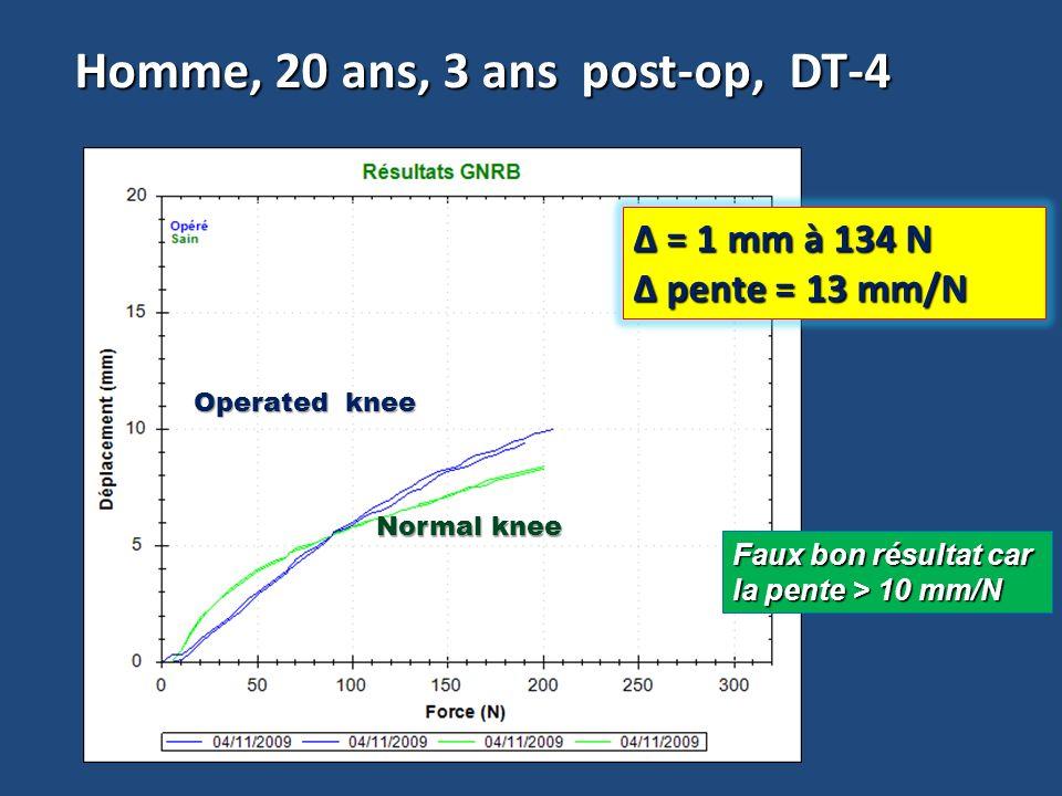 Homme, 20 ans, 3 ans post-op, DT-4 Δ = 1 mm à 134 N pente = 13 mm/N pente = 13 mm/N Faux bon résultat car la pente > 10 mm/N Operated knee Normal knee