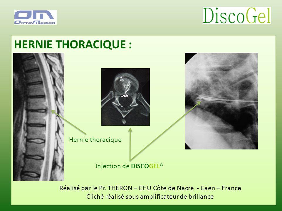 HERNIE THORACIQUE : Réalisé par le Pr. THERON – CHU Côte de Nacre - Caen – France Cliché réalisé sous amplificateur de brillance Injection de DISCOGEL