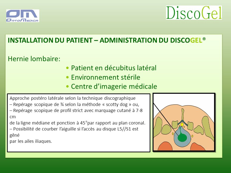 INSTALLATION DU PATIENT – ADMINISTRATION DU DISCOGEL® Hernie lombaire: Patient en décubitus latéral Environnement stérile Centre dimagerie médicale IN
