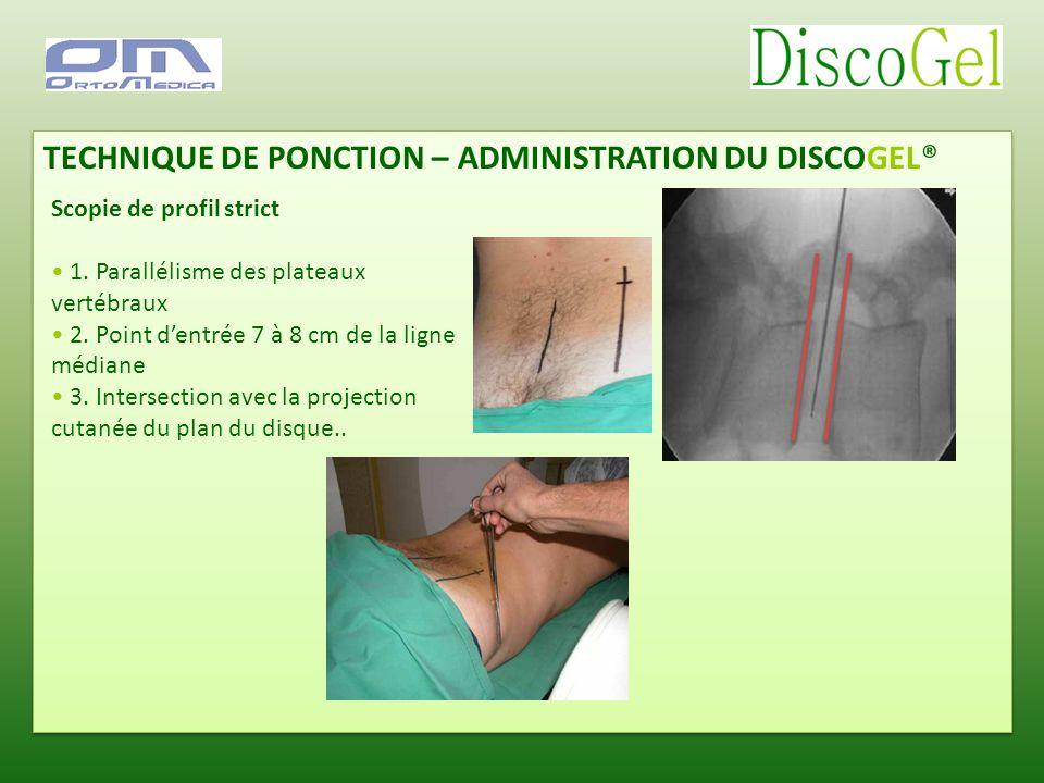 TECHNIQUE DE PONCTION – ADMINISTRATION DU DISCOGEL® Scopie de profil strict 1. Parallélisme des plateaux vertébraux 2. Point dentrée 7 à 8 cm de la li
