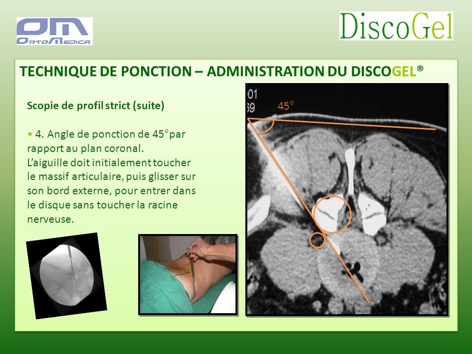 TECHNIQUE DE PONCTION – ADMINISTRATION DU DISCOGEL® Scopie de profil strict (suite) 4. Angle de ponction de 45°par rapport au plan coronal. Laiguille