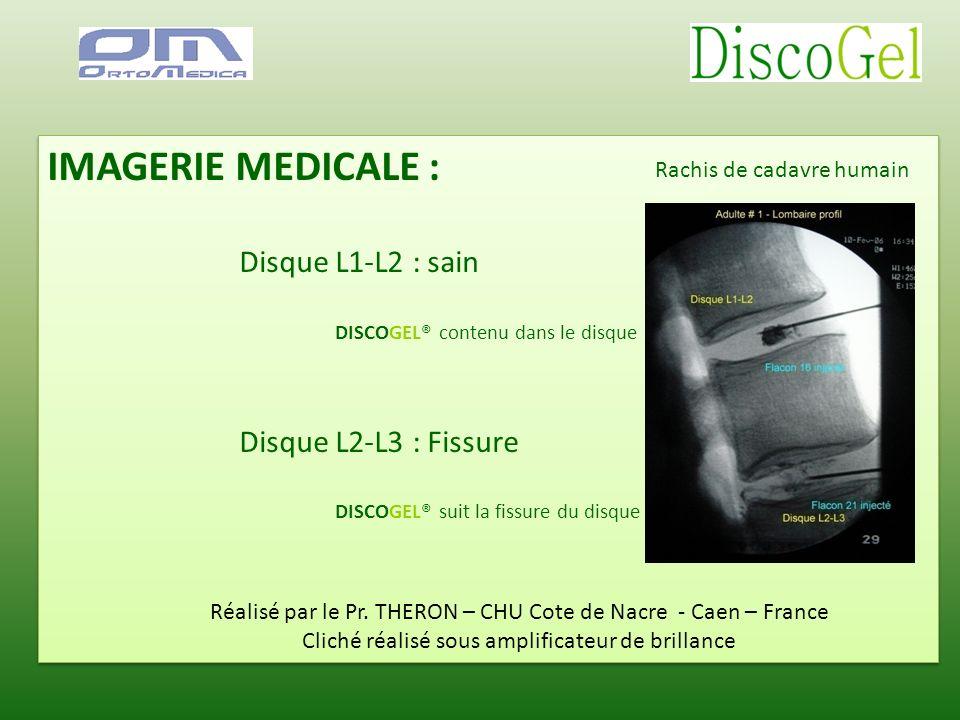 IMAGERIE MEDICALE : Disque L1-L2 : sain DISCOGEL® contenu dans le disque Disque L2-L3 : Fissure DISCOGEL® suit la fissure du disque IMAGERIE MEDICALE