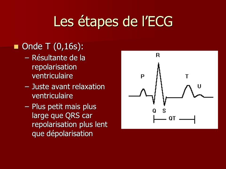 Les étapes de lECG Onde T (0,16s): Onde T (0,16s): –Résultante de la repolarisation ventriculaire –Juste avant relaxation ventriculaire –Plus petit ma