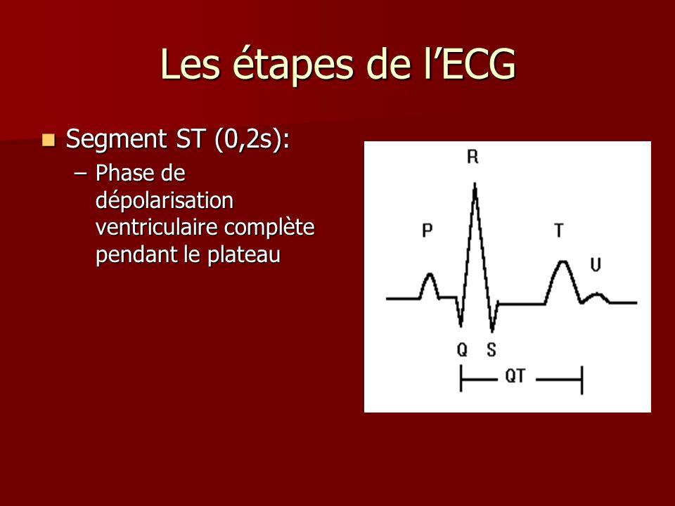Les étapes de lECG Segment ST (0,2s): Segment ST (0,2s): –Phase de dépolarisation ventriculaire complète pendant le plateau