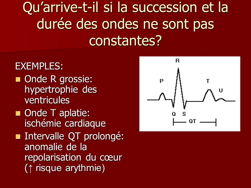 Quarrive-t-il si la succession et la durée des ondes ne sont pas constantes? EXEMPLES: Onde R grossie: hypertrophie des ventricules Onde R grossie: hy