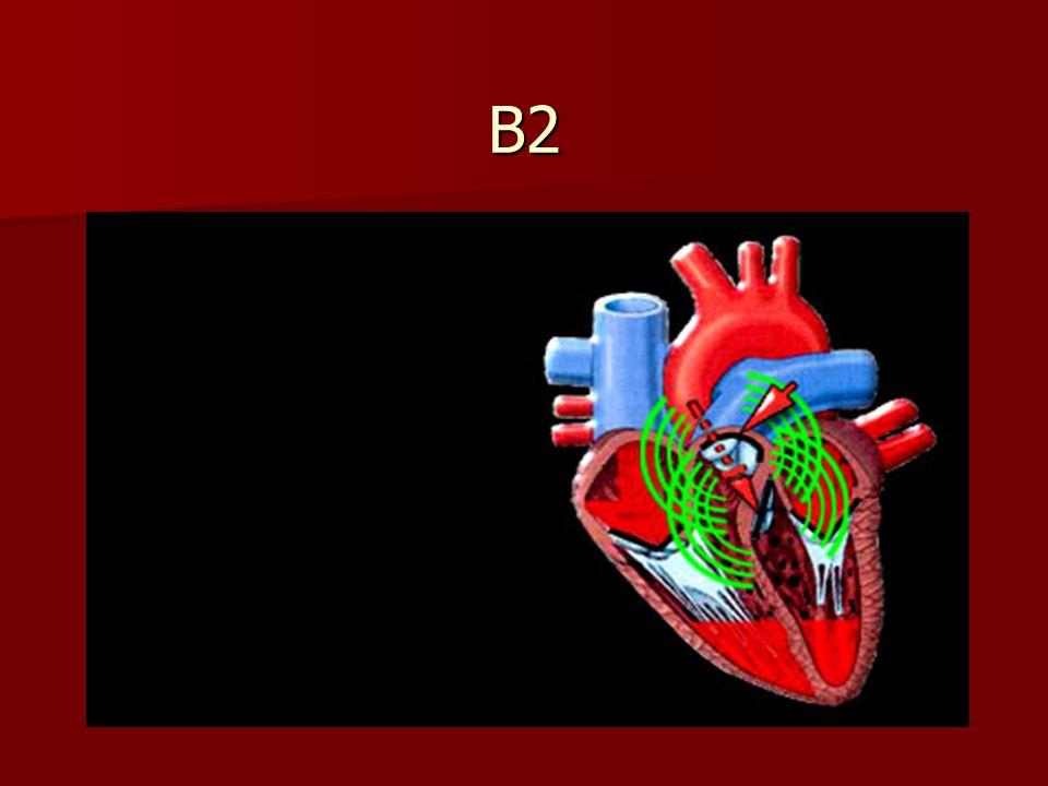 Signification de lintervalle La distance entre B1 et B2 correspond à la systole ventriculaire.