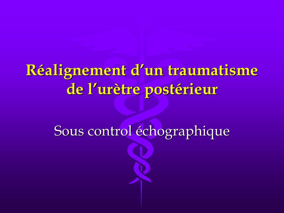 Réalignement dun traumatisme de lurètre postérieur Sous control échographique