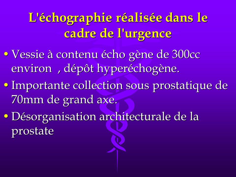 L'échographie réalisée dans le cadre de l'urgence Vessie à contenu écho gène de 300cc environ, dépôt hyperéchogène.Vessie à contenu écho gène de 300cc