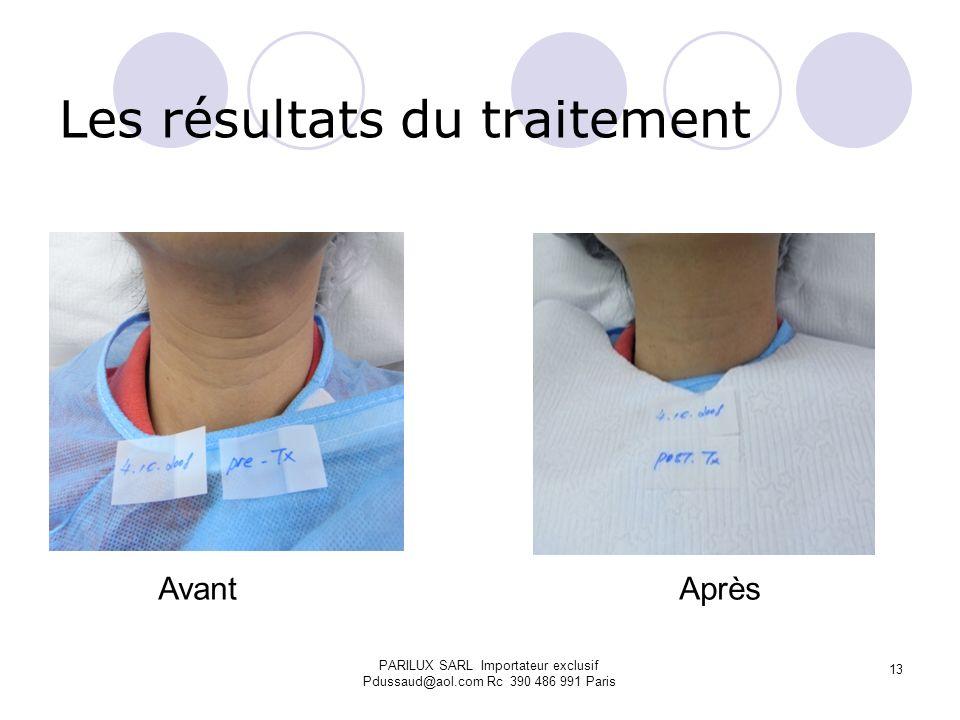 Les résultats du traitement Avant Après PARILUX SARL Importateur exclusif Pdussaud@aol.com Rc 390 486 991 Paris 13