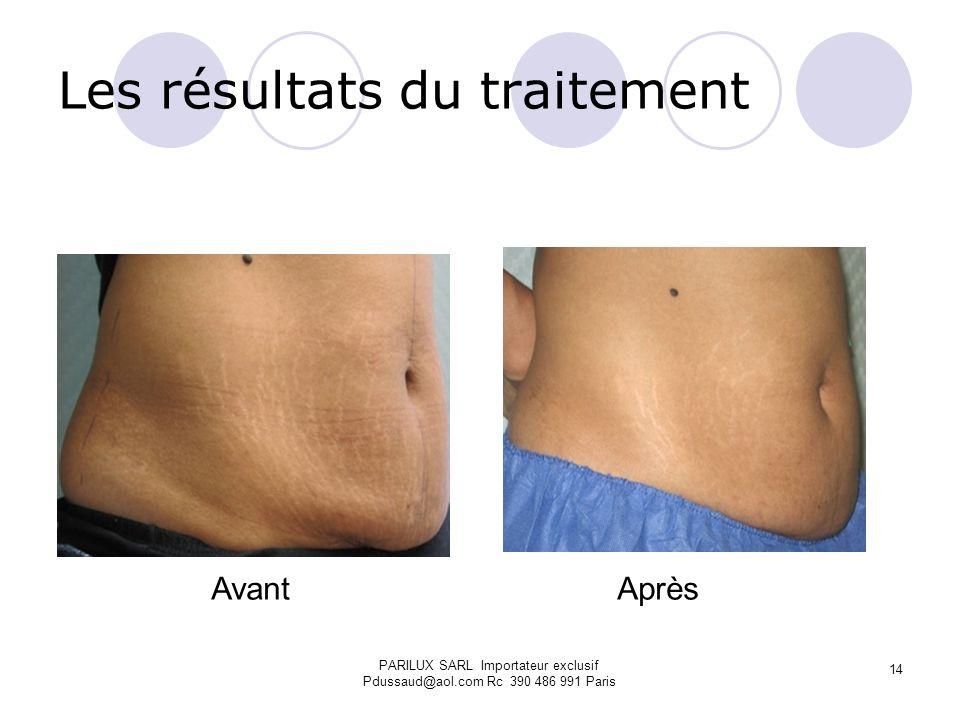 Les résultats du traitement Avant Après PARILUX SARL Importateur exclusif Pdussaud@aol.com Rc 390 486 991 Paris 14