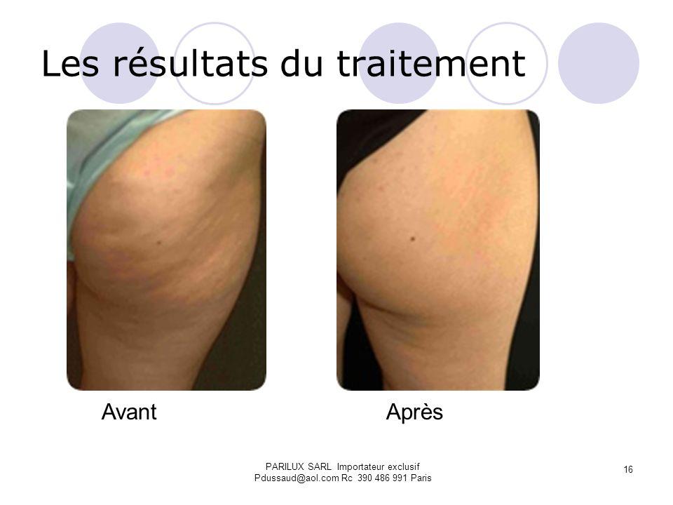 Les résultats du traitement Avant Après PARILUX SARL Importateur exclusif Pdussaud@aol.com Rc 390 486 991 Paris 16