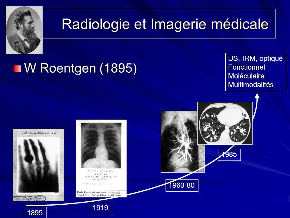 Radiologie et Imagerie médicale Radiologie et Imagerie médicale W Roentgen (1895) 1895 1919 1960-80 1985 US, IRM, optique Fonctionnel Moléculaire Mult