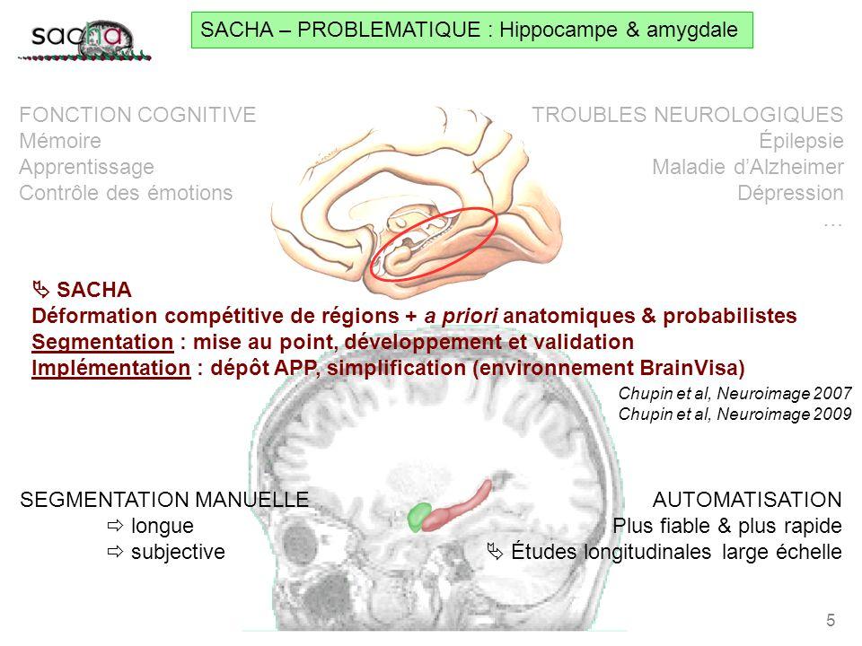 AntérieurPostérieur daprès D. Hasboun SACHA – PROBLEMATIQUE : Hippocampe & amygdale 5 TROUBLES NEUROLOGIQUES Épilepsie Maladie dAlzheimer Dépression …