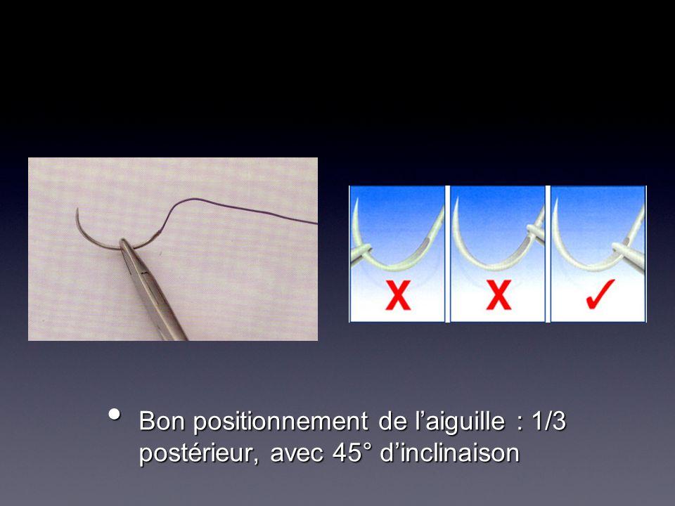 Bon positionnement de laiguille : 1/3 postérieur, avec 45° dinclinaison Bon positionnement de laiguille : 1/3 postérieur, avec 45° dinclinaison