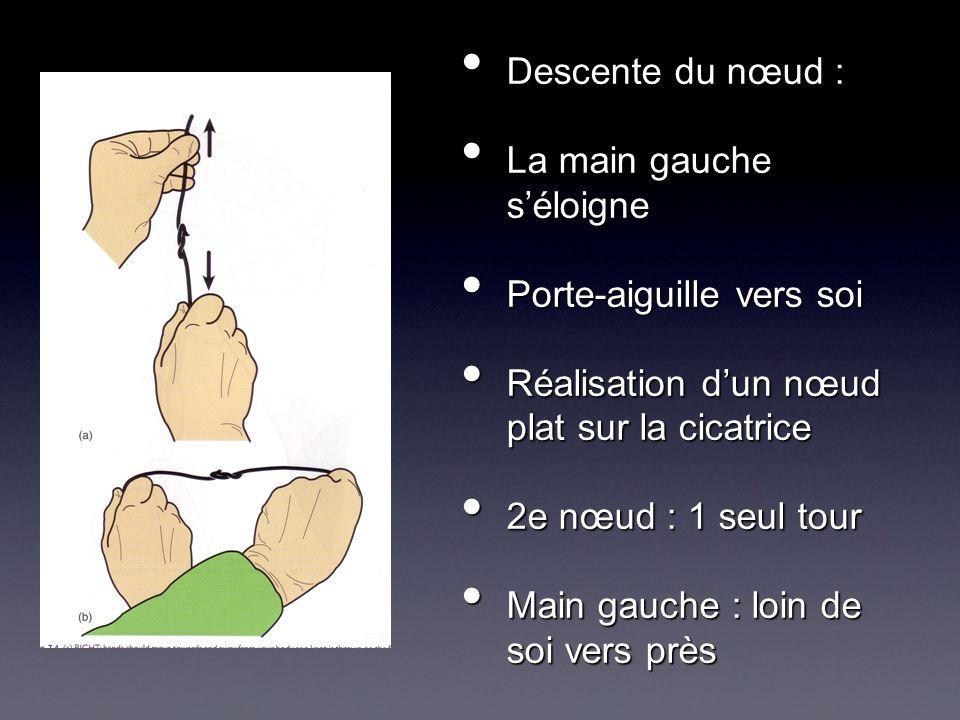 Descente du nœud : Descente du nœud : La main gauche séloigne La main gauche séloigne Porte-aiguille vers soi Porte-aiguille vers soi Réalisation dun