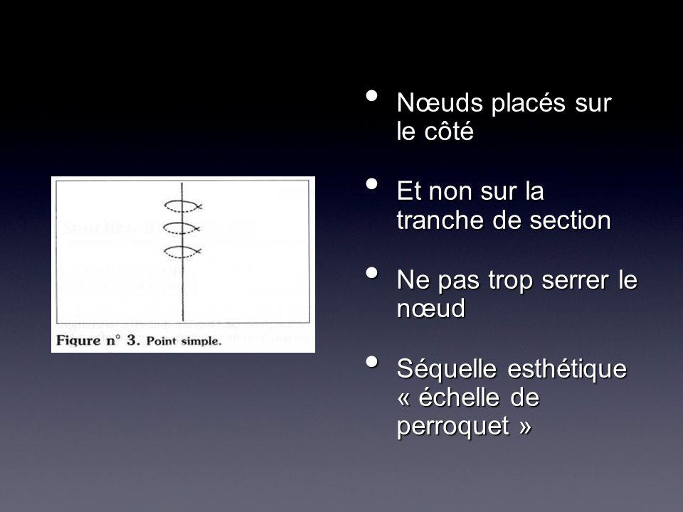 Nœuds placés sur le côté Nœuds placés sur le côté Et non sur la tranche de section Et non sur la tranche de section Ne pas trop serrer le nœud Ne pas