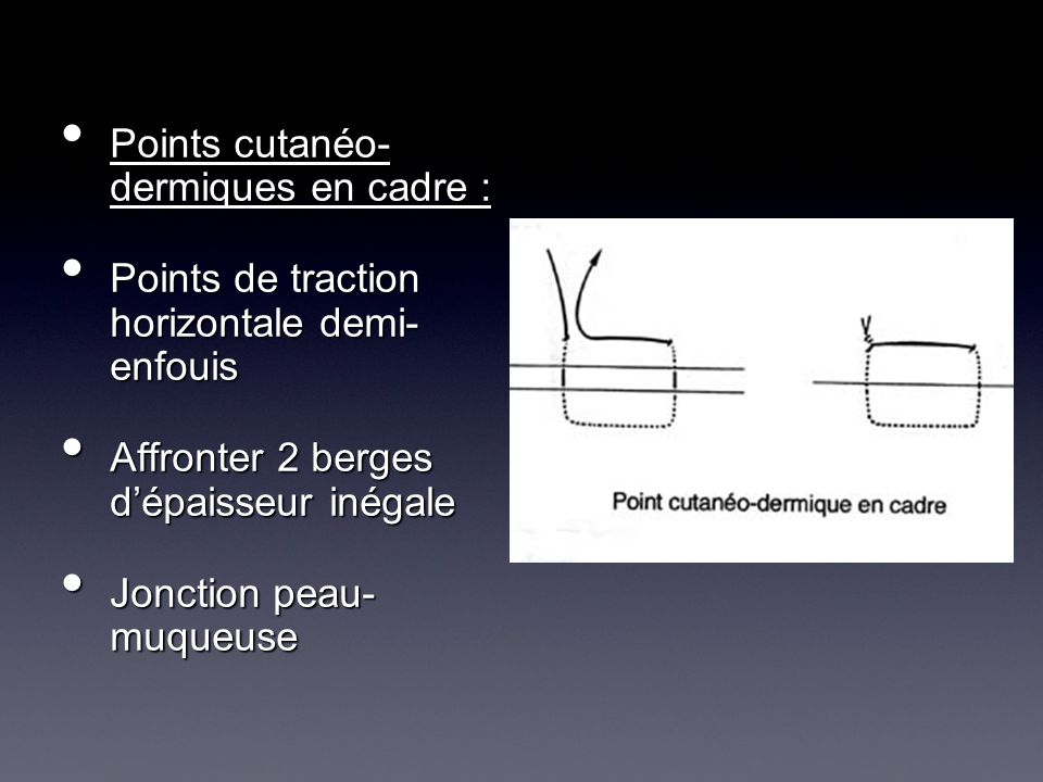 Points cutanéo- dermiques en cadre : Points cutanéo- dermiques en cadre : Points de traction horizontale demi- enfouis Points de traction horizontale
