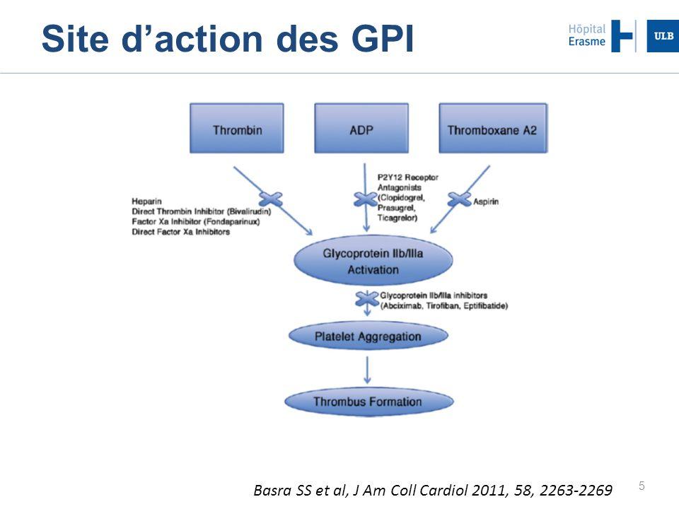 26 Winchester DE et al, J Am Coll Cardiol 2011, 57, 1190-1199 Relation GPI et infarctus non fatal