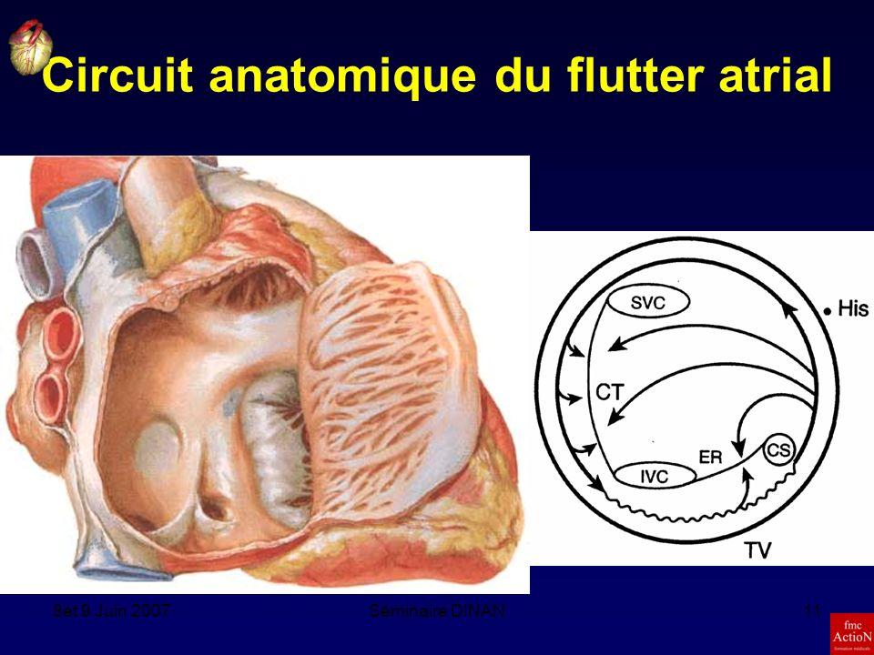 8et 9 Juin 2007Séminaire DINAN11 Circuit anatomique du flutter atrial