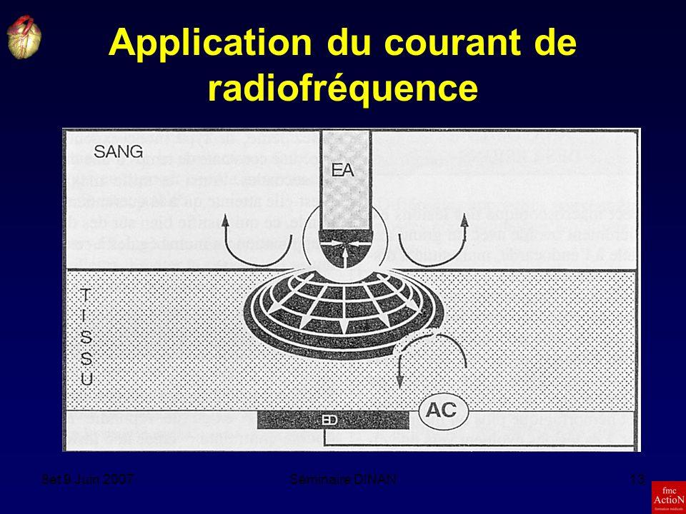 8et 9 Juin 2007Séminaire DINAN13 Application du courant de radiofréquence