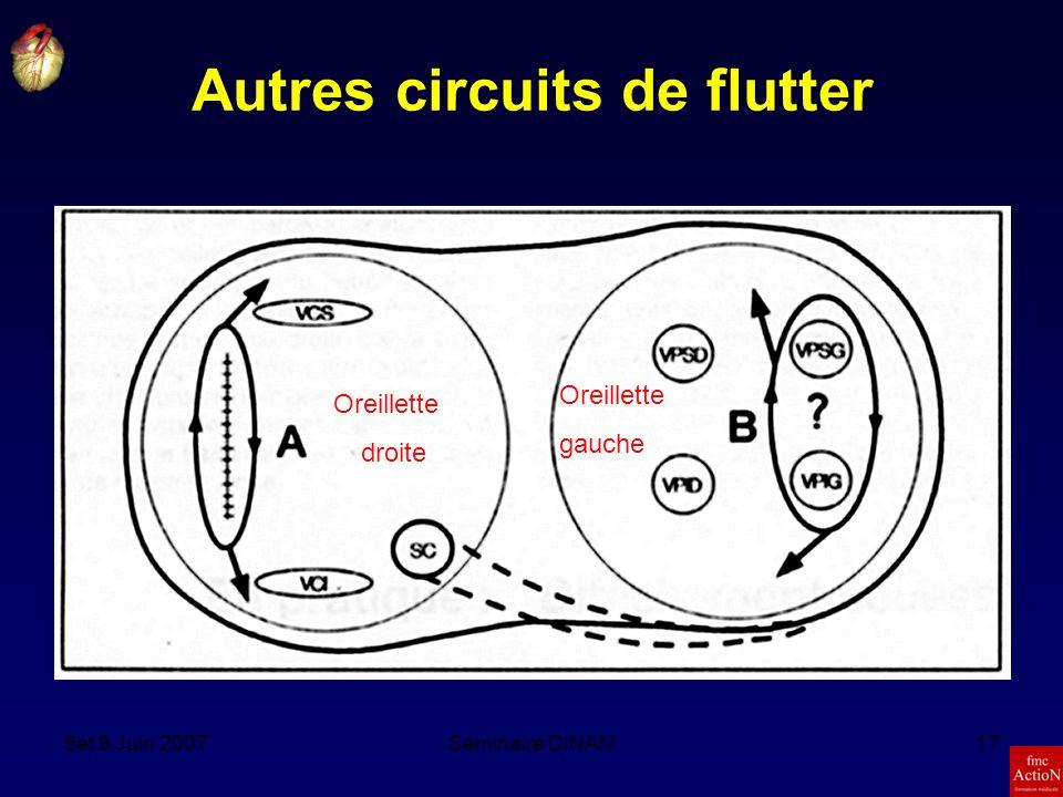8et 9 Juin 2007Séminaire DINAN17 Autres circuits de flutter Oreillette droite Oreillette gauche