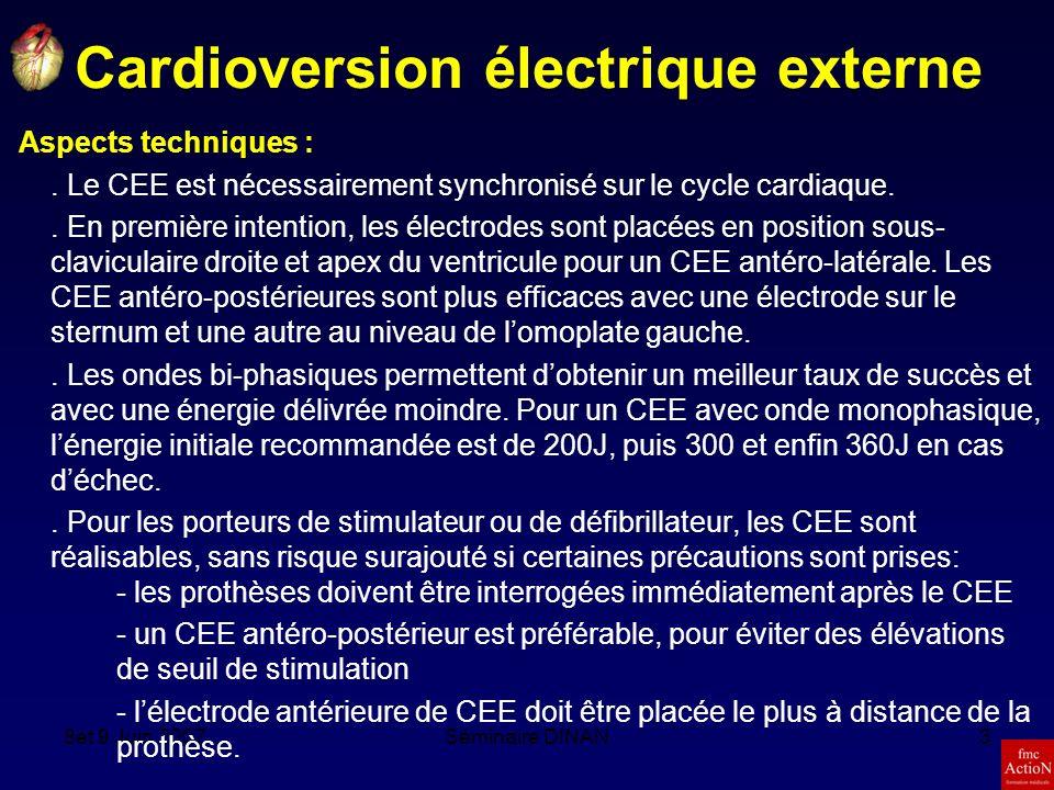 8et 9 Juin 2007Séminaire DINAN4 Le Défibrillateur automatique implantable Prévention secondaire:.