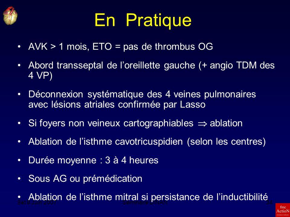 8et 9 Juin 2007Séminaire DINAN34 En Pratique AVK > 1 mois, ETO = pas de thrombus OG Abord transseptal de loreillette gauche (+ angio TDM des 4 VP) Déconnexion systématique des 4 veines pulmonaires avec lésions atriales confirmée par Lasso Si foyers non veineux cartographiables ablation Ablation de listhme cavotricuspidien (selon les centres) Durée moyenne : 3 à 4 heures Sous AG ou prémédication Ablation de listhme mitral si persistance de linductibilité