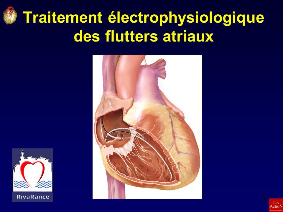 8et 9 Juin 2007Séminaire DINAN6 Traitement électrophysiologique des flutters atriaux
