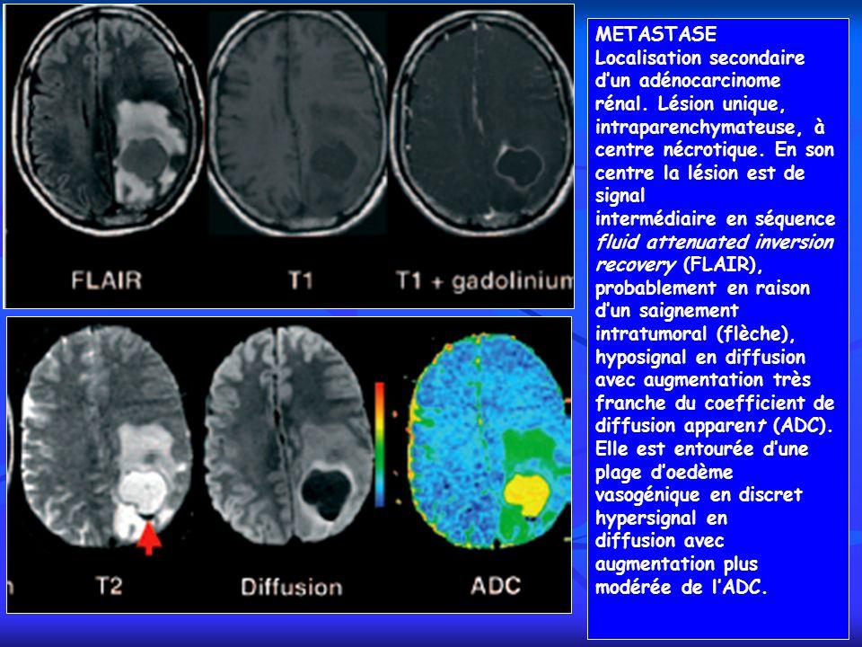 METASTASE Localisation secondaire dun adénocarcinome rénal. Lésion unique, intraparenchymateuse, à centre nécrotique. En son centre la lésion est de s