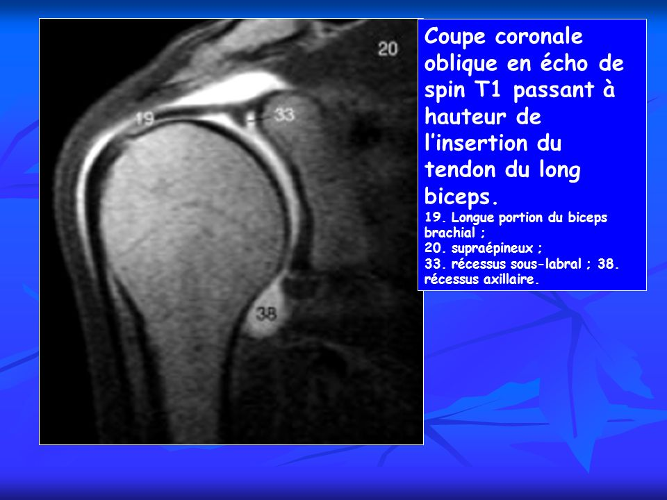 Coupe coronale oblique en écho de spin T1 passant à hauteur de linsertion du tendon du long biceps. 19. Longue portion du biceps brachial ; 20. supraé