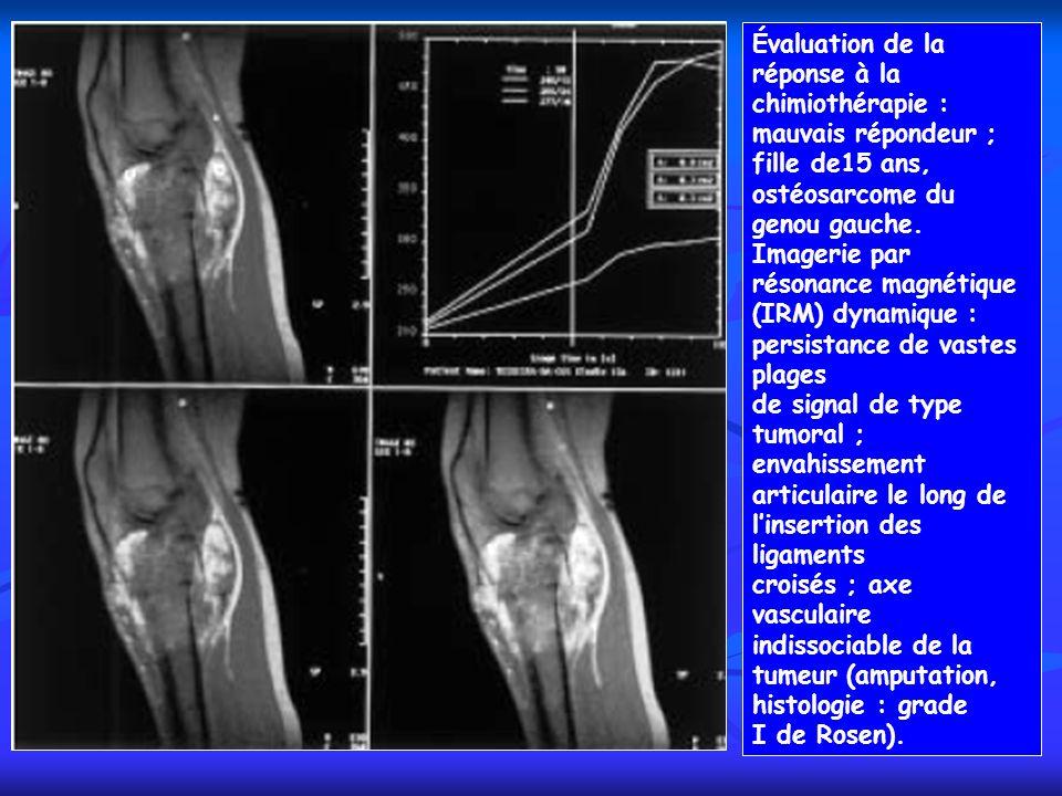 Évaluation de la réponse à la chimiothérapie : mauvais répondeur ; fille de15 ans, ostéosarcome du genou gauche. Imagerie par résonance magnétique (IR
