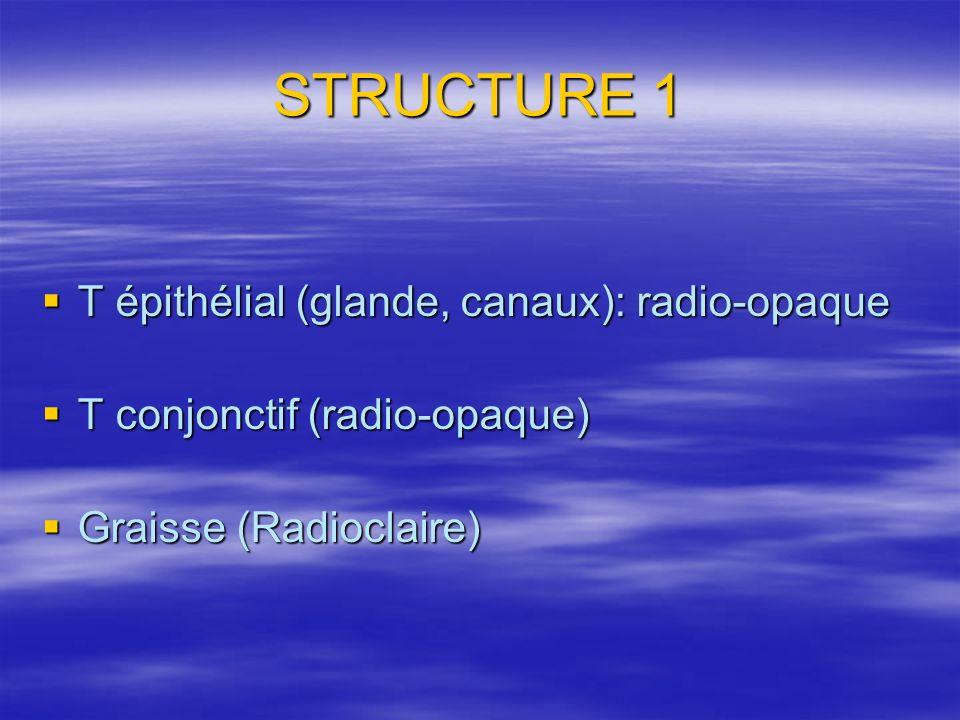 STRUCTURE 1 T épithélial (glande, canaux): radio-opaque T épithélial (glande, canaux): radio-opaque T conjonctif (radio-opaque) T conjonctif (radio-op