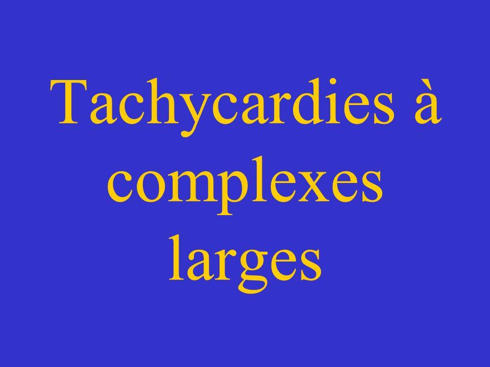 Tachycardies à complexes larges