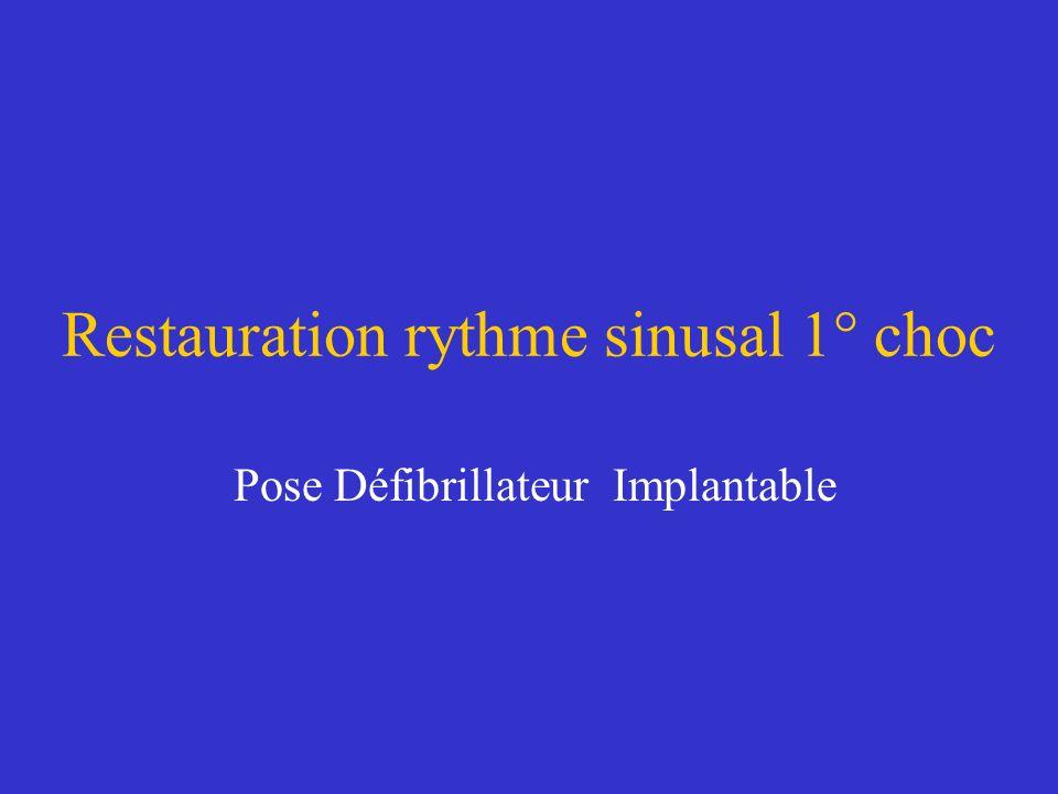 Restauration rythme sinusal 1° choc Pose Défibrillateur Implantable