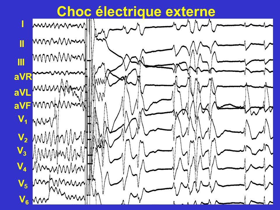 I II III aVF V1V1 V2V2 V3V3 V4V4 aVL aVR V5V5 V6V6 Choc électrique externe