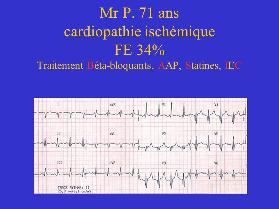 Mr P. 71 ans cardiopathie ischémique FE 34% Traitement Béta-bloquants, AAP, Statines, IEC