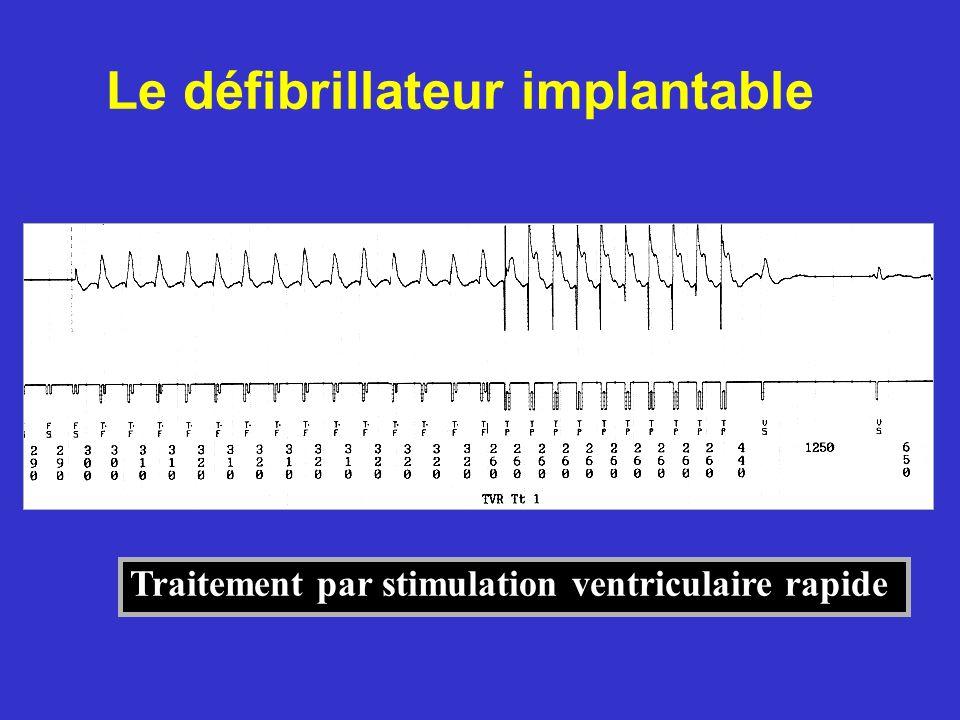 Traitement par stimulation ventriculaire rapide