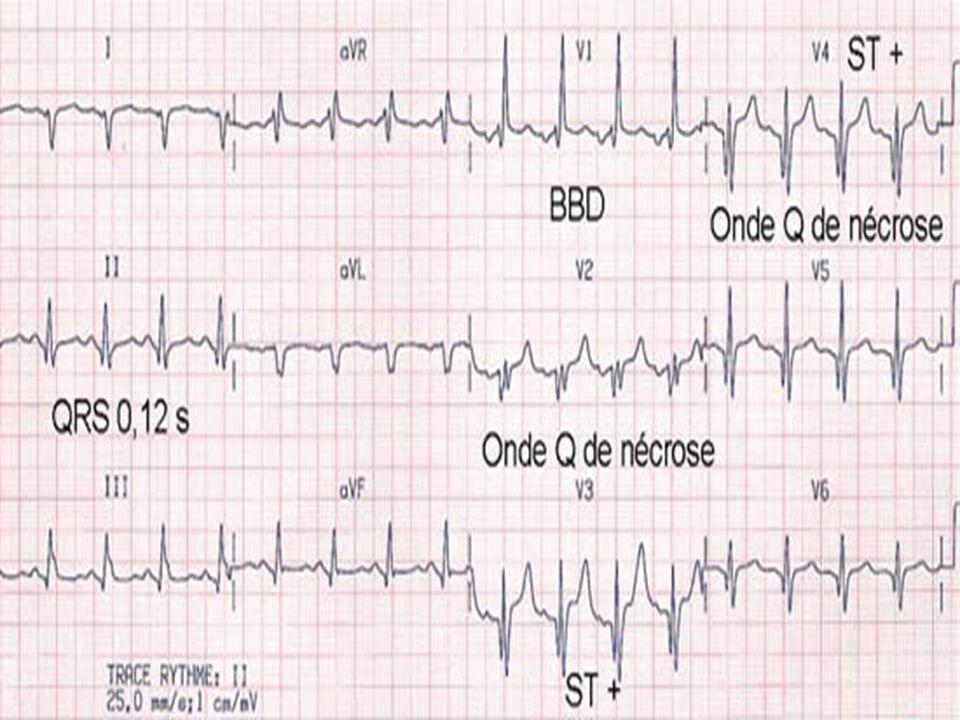 Les quatre signes les plus évocateurs d une tachycardie ventriculaire sont : une tachycardie régulière rapide ; faite de QRS dysmorphiques ; d aspect similaire aux ESV intercritiques ; au sein desquels on peut déceler une activité auriculaire dissociée.