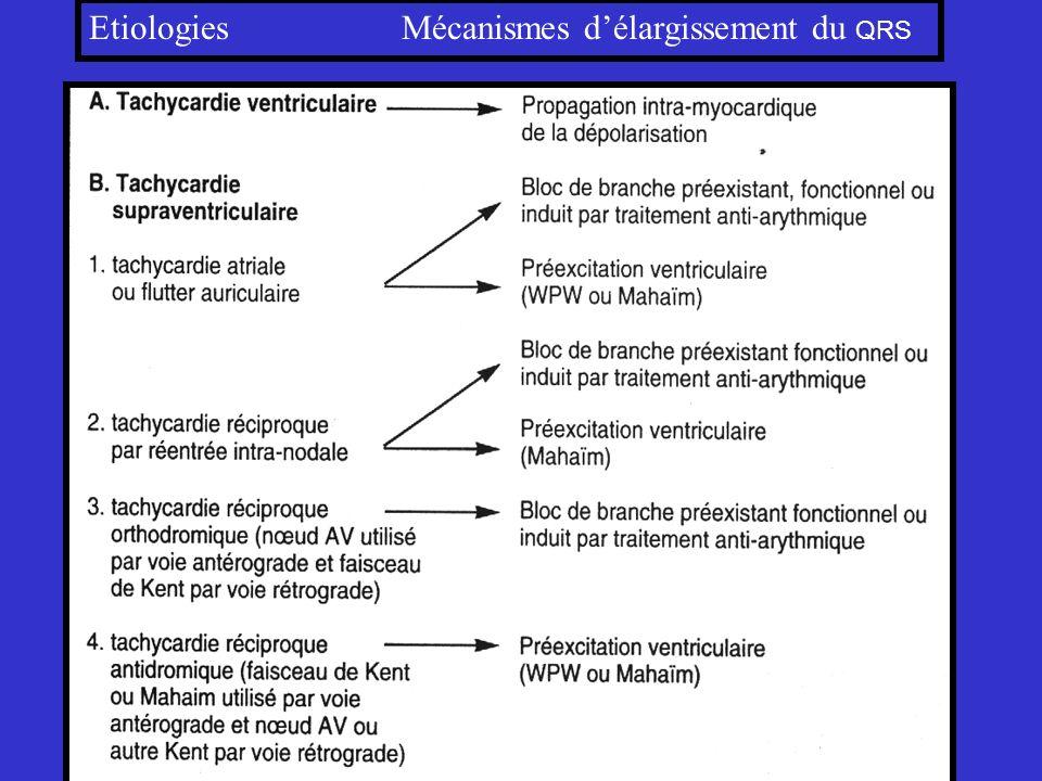 Etiologies Mécanismes délargissement du QRS