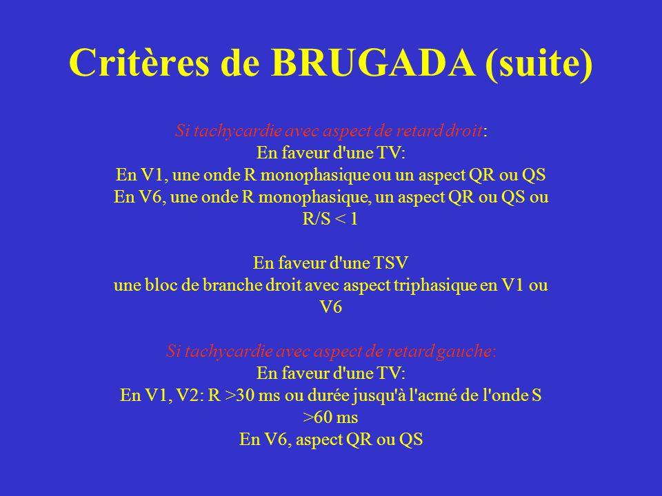 Si tachycardie avec aspect de retard droit: En faveur d'une TV: En V1, une onde R monophasique ou un aspect QR ou QS En V6, une onde R monophasique, u