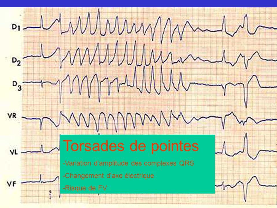 Torsades de pointes -Variation damplitude des complexes QRS -Changement d'axe électrique -Risque de FV