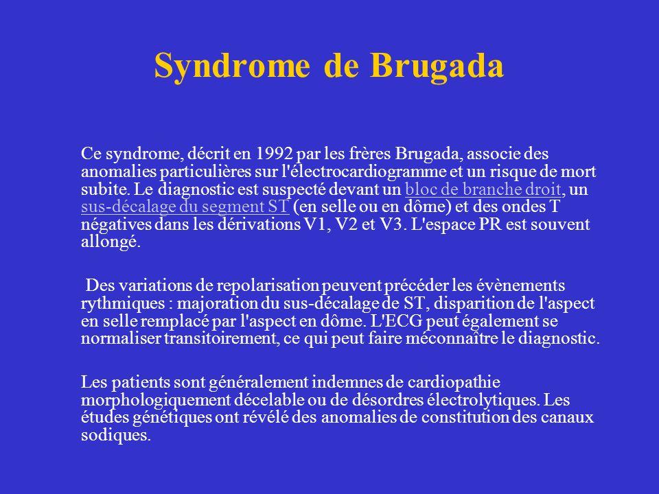 Syndrome de Brugada Ce syndrome, décrit en 1992 par les frères Brugada, associe des anomalies particulières sur l'électrocardiogramme et un risque de
